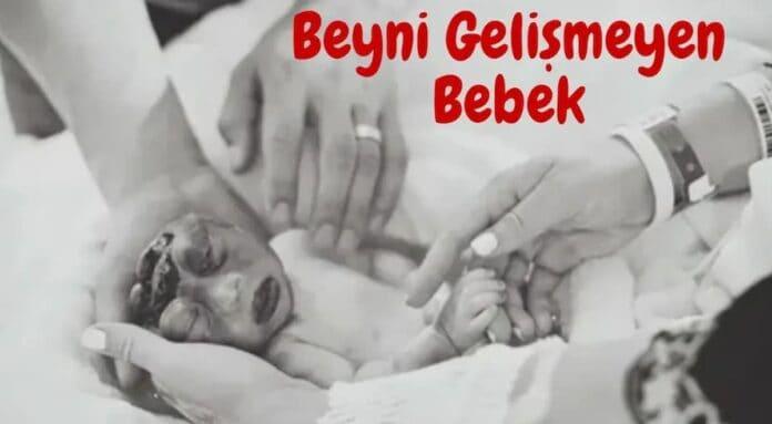 anne karnında beyni gelişmeyen bebek