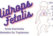 hidrops fetalis bebekte su toplamasi
